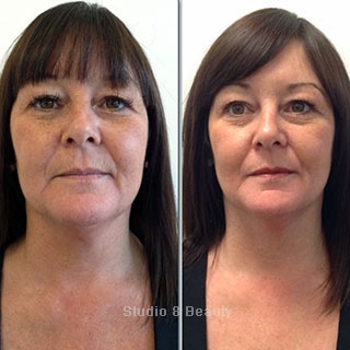CACI Specialist treatment client 2 before and after pictures