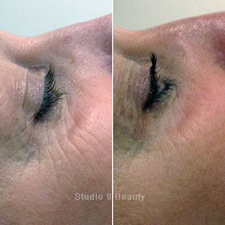 CACI Specialist treatment client 3 before and after pictures