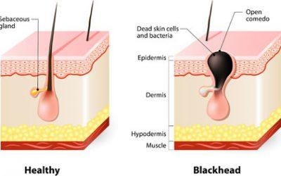 Blackheads: causes, treatment, prevention
