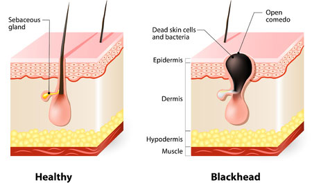 How to get rid of blackheads forever