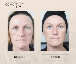 COMCIT Facial before and after images 1