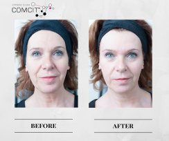COMCIT Facial before and after images 2