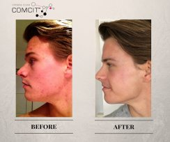 COMCIT Facial before and after images 3