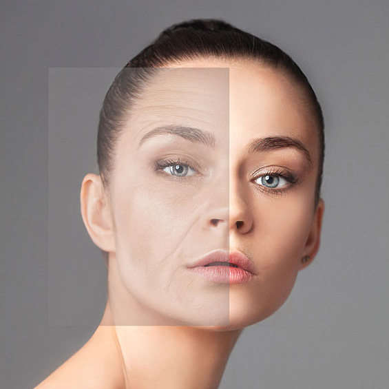 image of woman before and after Mesoestetic Facial Peel